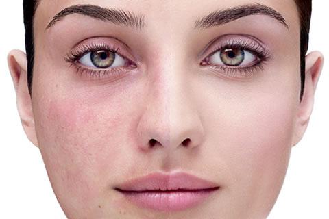 Da mặt đổi sang những màu sắc bất thường là dấu hiệu gì ?